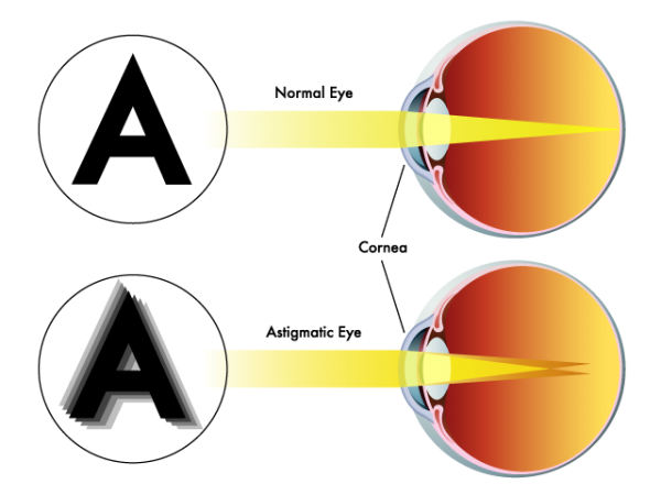 Normal Eye vs. Astigmatic Eye